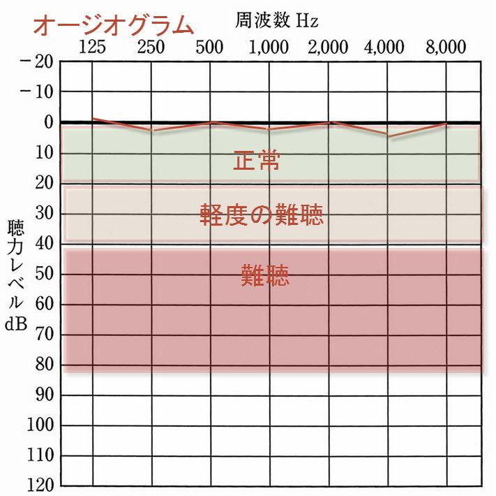 耳鳴りの治療薬とオージオグラフ